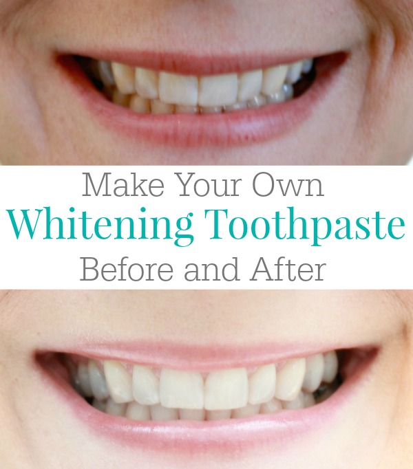Make Your Own Whitening Toothpaste - Before and After Photo